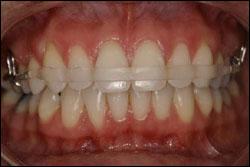 Early Orthodontics - Dr. Brock Rondeau & Associates