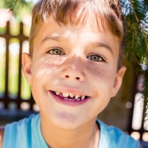 Child with crooked teeth wonders when he can get braces